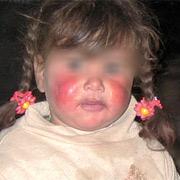 Ce faci daca copilul tau sufera arsuri (lichide fierbinti, flacara, solare, cu substante chimice, curent electric)
