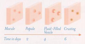 Stadiile prin care trec veziculele in varicela