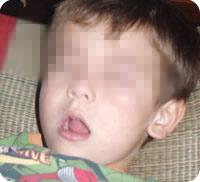 Facies adenoid (polipii la copii)